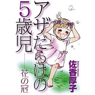 アザだらけの5歳児 花の冠